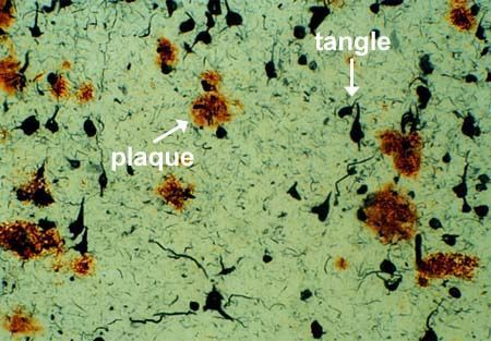 Amyloid plaques and tau proteins